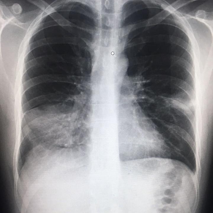 Radiografía de Garry