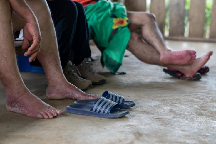 Una de las afecciones más comunes que presentan las personas tras atravesar el Darién es el daño en los pies. La humedad continua, el contacto con la arena y el barro y la gran cantidad de días de caminata hacen que los pies acaben inflamados y dañados. P