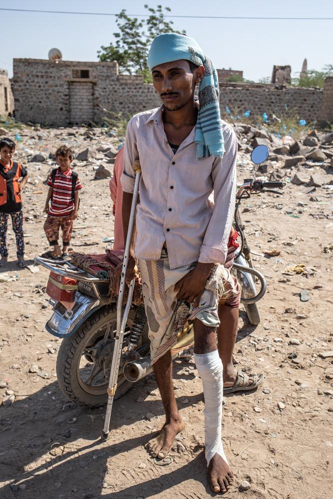 Herido por la explosión de una mina cerca de Mauza.