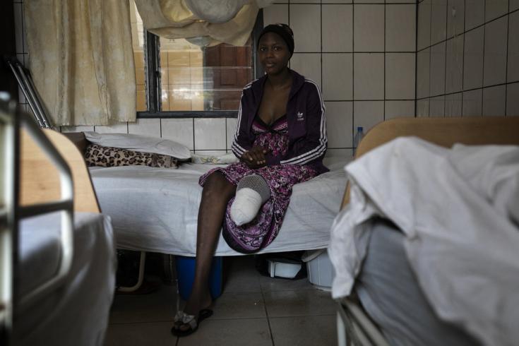 Ornella (27), perdió la pierna izquierda tras un accidente de tráfico. En el hospital Saint Mary Soledad, en Bamenda, noroeste de Camerún, los cirujanos de MSF intentaron salvarle la pierna durante tres meses, pero finalmente tuvieron que amputarla. . La foto fue tomada a principios de marzo de 2020, antes de que la pandemia de COVID-19 golpeara la región.