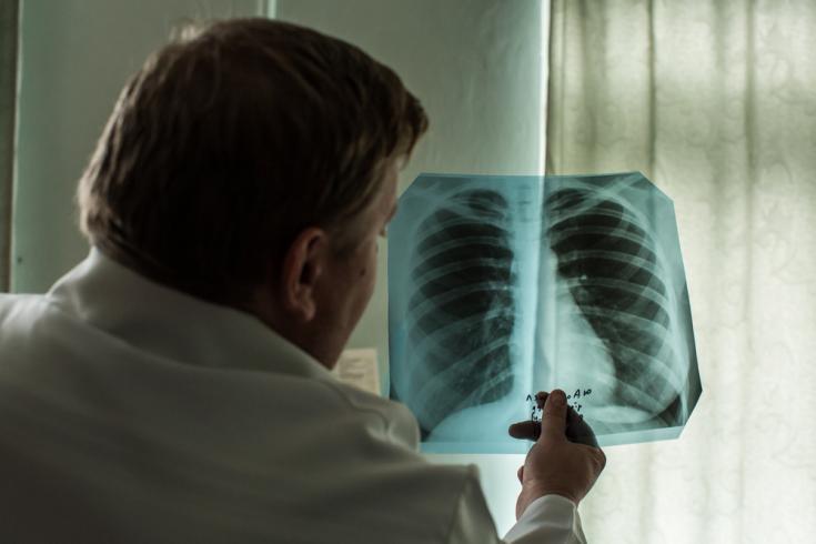Radiografía paciente tuberculosis