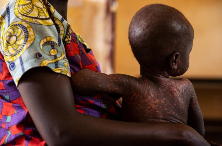 Nina con Ornella, de 2 años, esperan en el centro médico que apoyamos en la aldea de Benzembe, en República Centroafricana.