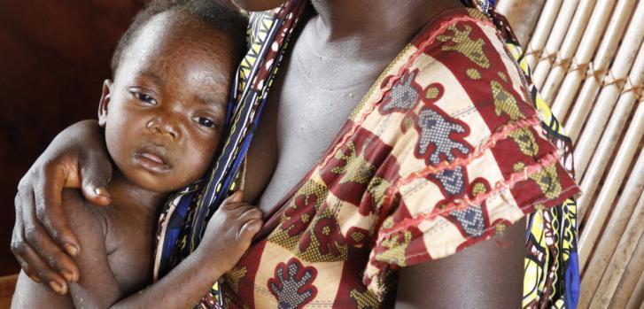 Trésor tiene sarampión grave. Está con su madre en el centro de salud de Bombe, pero será trasladado al hospital general de Bosobolo donde Médicos Sin Fronteras brinda apoyo para atender casos complicados. Febrero de 2021