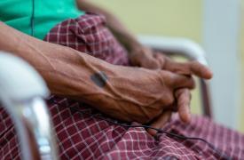 Paciente de MSF en una clínica que improvisamos en Yangon, Myanmar. Abril de 2021