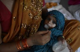 India: la desnutrición aguda necesita atención médica urgente