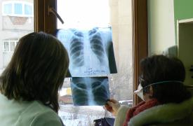 Tratamiento de Médicos Sin Fronteras en Armenia  en 2013 contra la tuberculosis resistente a los medicamentos. Andrea Bussotti/MSF