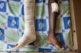 Paciente del centro de atención traumatológica de Médicos Sin Fronteras en Bujumbura