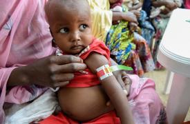 Ese simple instrumeto (MUAC) permite identificar rápidamente, al medir la circunferencia del brazo de los niños, el nivel de gravedad de la desnutrición. Actividades de Médicos Sin Fronteras en Gwange, Maiduguri, Nigeria ©Aurelie Baumel/MSF