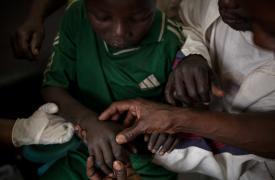 Un niño de 13 años atendido por mordedura de serpiente en el hospital de Paoua, República Centroafricana.