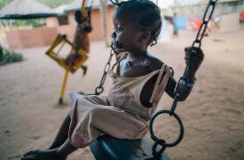 Maryam tiene cuatro años y juega en el patio del Hospital Sokoto Noma. Es una de las pocas personas que sobreviven a la enfermedad.