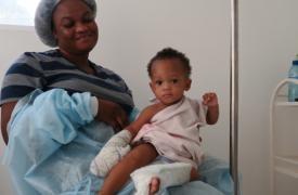 En octubre, nuestros compañeros en Drouillard, Haití, atendieron a una docena de niños pequeños como Joseph, en la imagen, con quemaduras causadas por líquidos calientes.