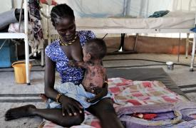 Wovo Logocho amamanta a su bebé con sarampión severo en la clínica de Médicos Sin Fronteras en la ciudad de Pibor, Sudán del Sur.